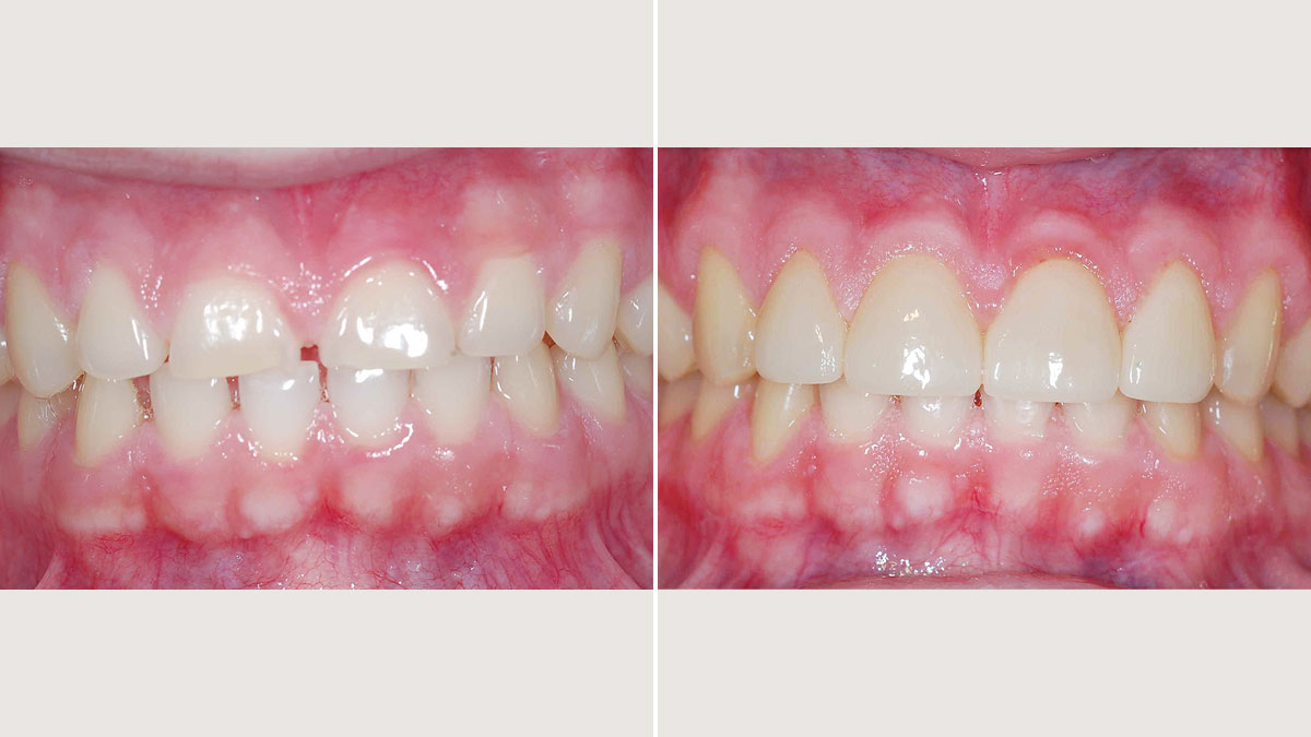 Esthetic crown lengthening and veneers