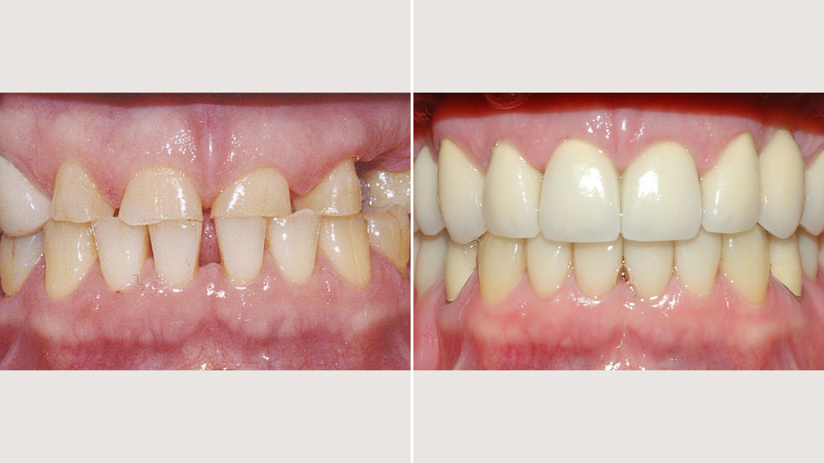 Full mouth reconstruction with crowns and partial dentures
