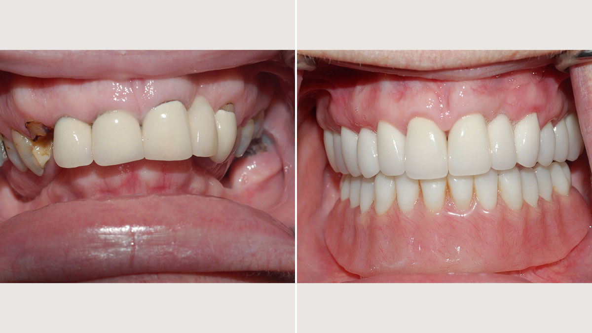 Upper crowns and lower bar and overdenture supported by implants