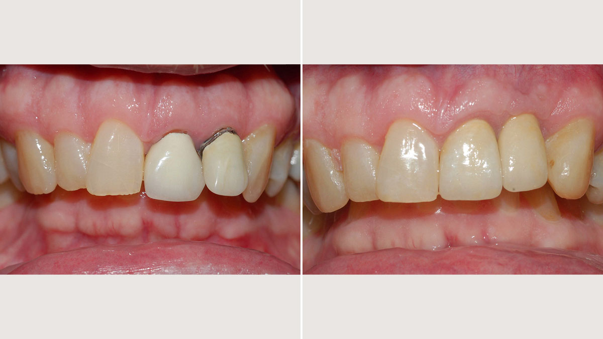 Lateral incisor replaced by implant supported crown and new crown on central incisor
