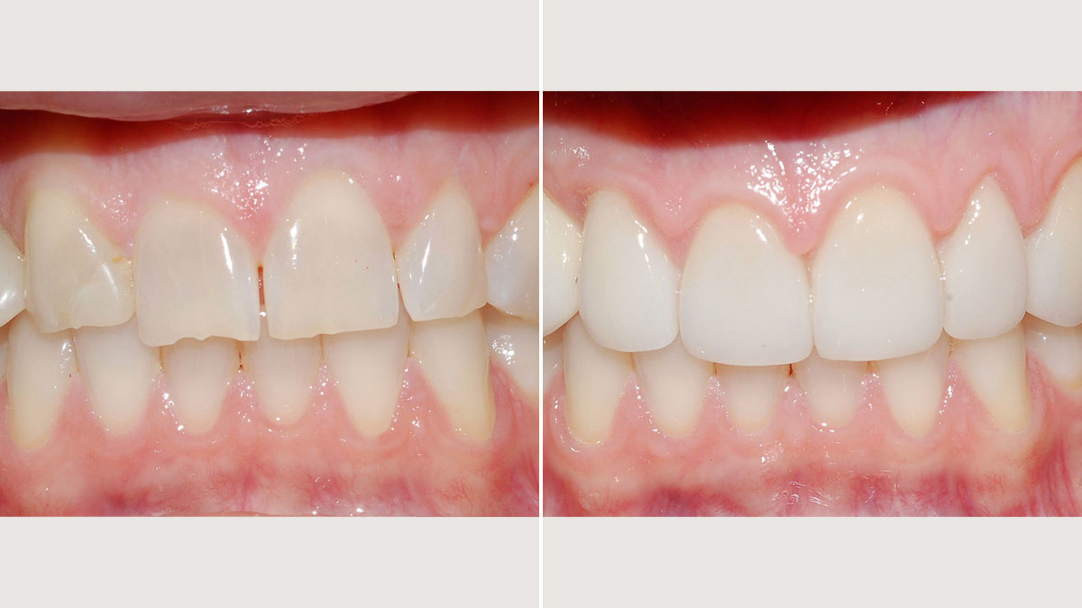 Chipped teeth and retained baby tooth in cuspid position, treated with implant supported crown and veneers