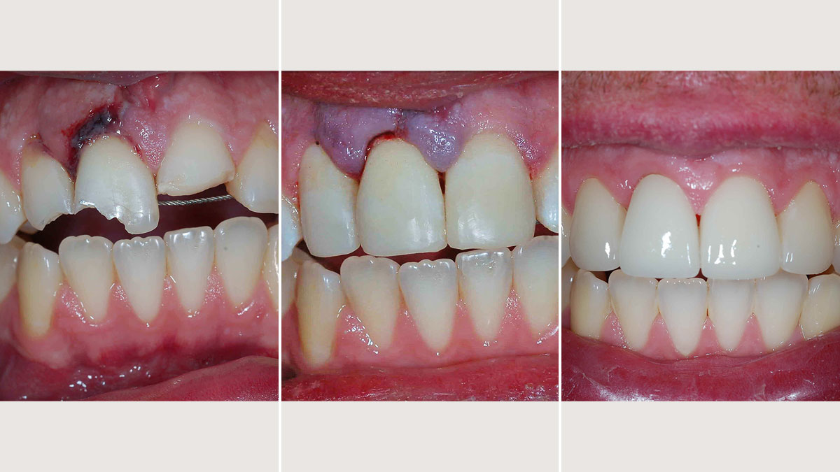Initial Emergency Composite restorations, with final restorations completed with Emax crowns