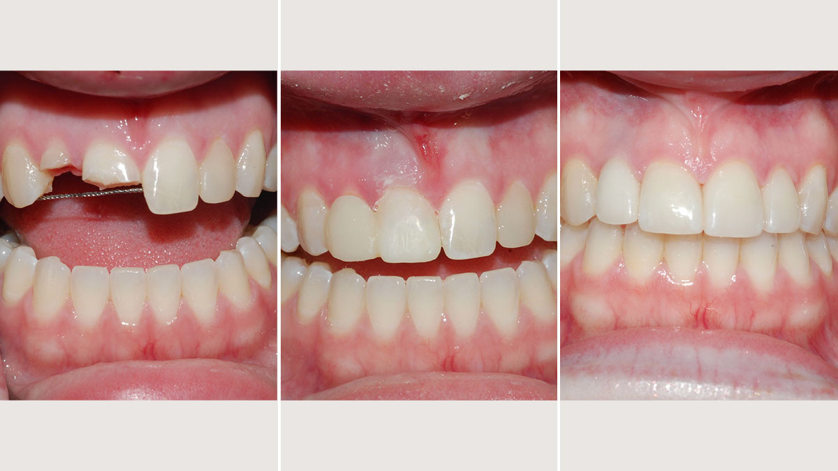 Initial emergency composites followed by implant supported crown and veneers